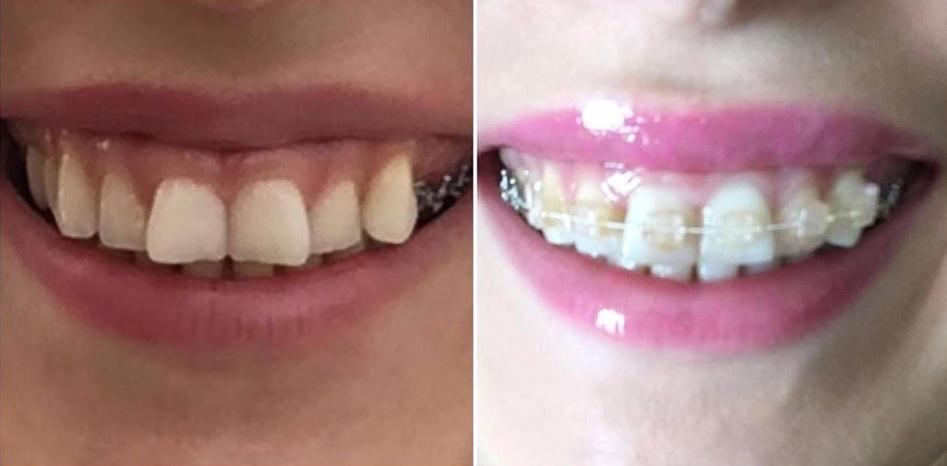 cu si fara aparat dentar